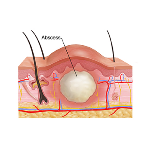 ABSCESS DRAINAGE