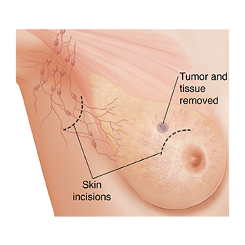 BREAST LUMPECTOMY