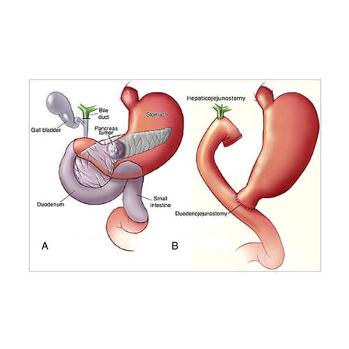 TOTAL PANCREATECTOMY